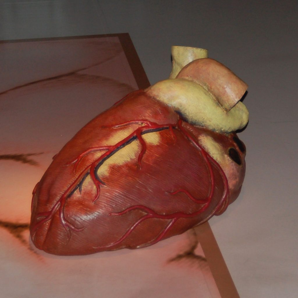 PULSATING HEART, @ 2008, polyurethane, acrylic paint, 30 x 60 x 30 cm